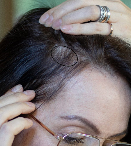 MEDICAL-CONDITIONS-OF-DIFFUSE-HAIR-LOSS-IN-WOMEN